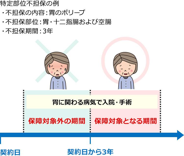 特定部位不担保の例 の図