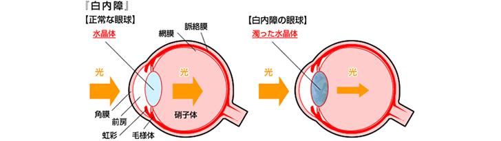 『白内障』正常な眼球と白内障の眼球