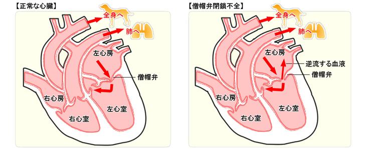 【正常な心臓】と【僧帽弁閉鎖不全】