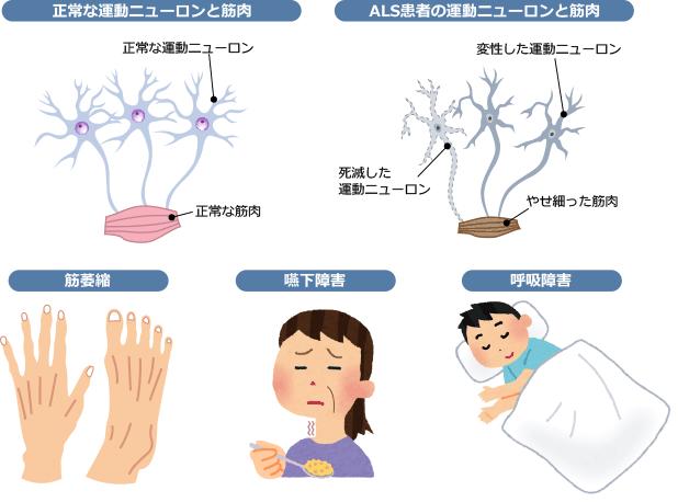 筋萎縮性側索硬化症イメージ