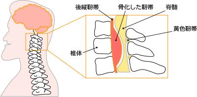 後縦靱帯骨化症イメージ