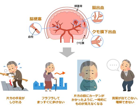 脳血管疾患イメージ