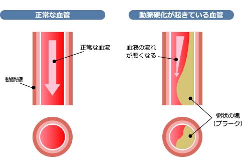 閉塞性動脈硬化症イメージ