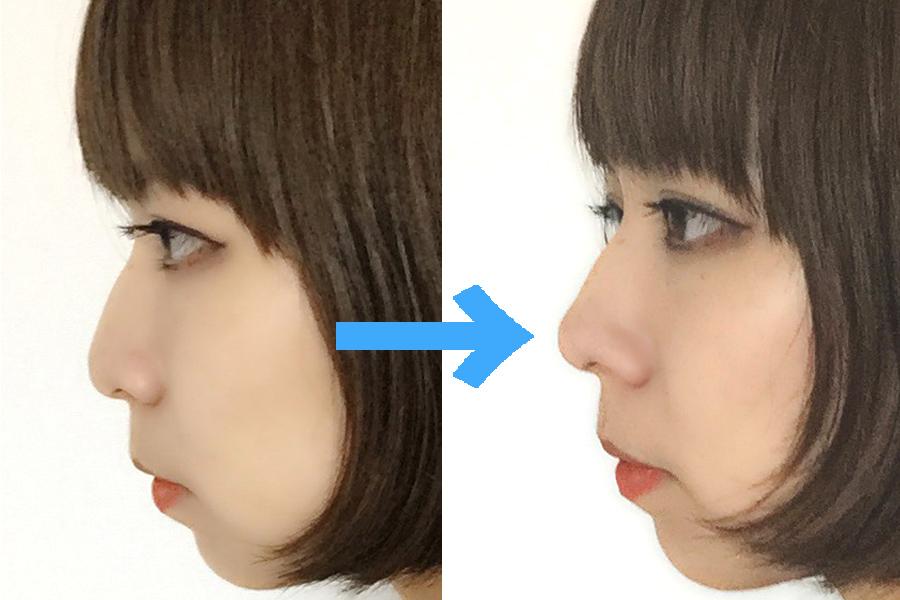 """鼻が高くなる!?""""鼻プチ""""の効果がどれほどなのか試してみた"""