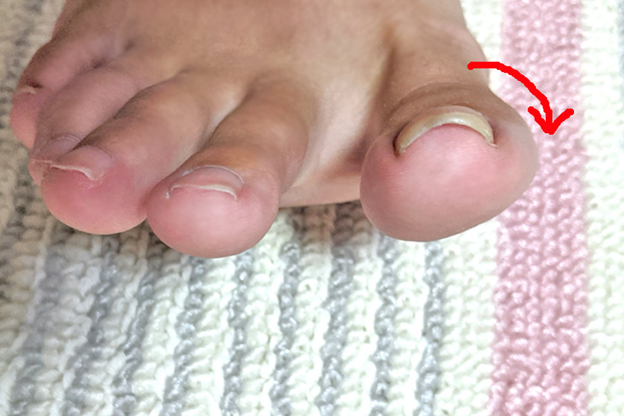 親指 足 爪 の 巻き