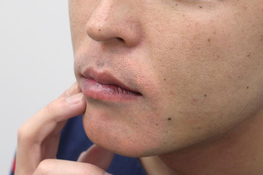 バレない男のメイク —ヒゲ剃りあとを目立たなくする方法−