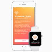 「Apple Watch」で心房細動はどれくらい正確に検知できるのか? ユーザー調査から有用性が明らかに
