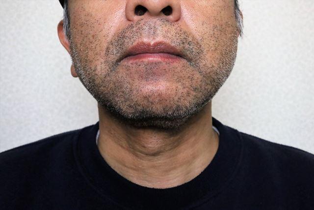 こちらが、2日間剃っていない筆者のヒゲ