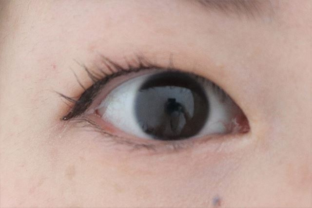 VロートPREMIUM高機能眼科用薬を使用