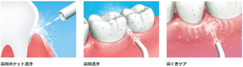歯周ポケット・歯間・歯ぐき、すみずみまでケアできるジェット洗浄