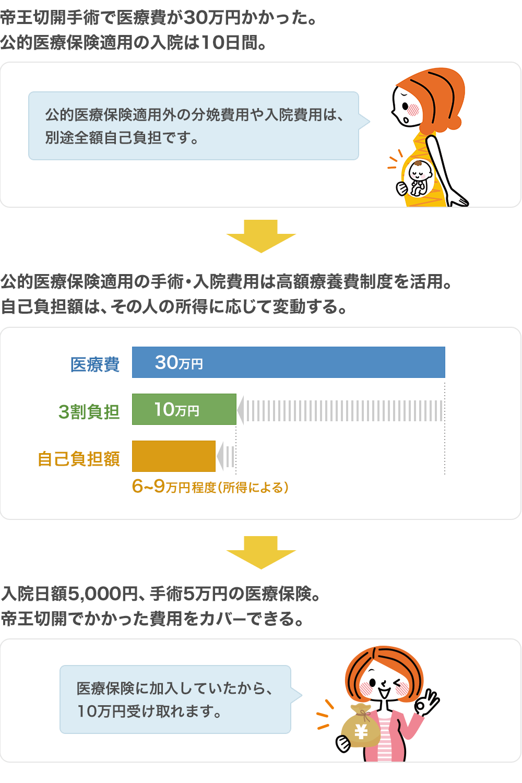 切開 保険 帝王 医療