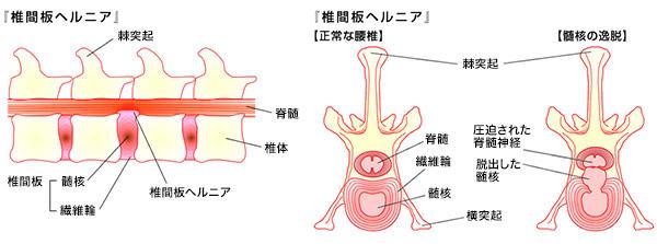 ヘルニア 治療 椎間板